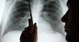 الشفرة الغامضة لسرطان الرئة