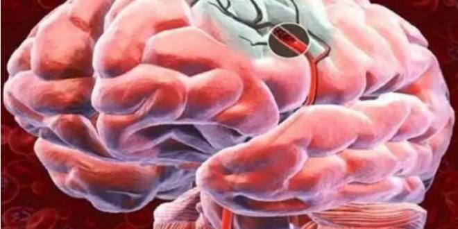 خبراء يكشفون علامة تتنبأ بحدوث النزيف الدماغي