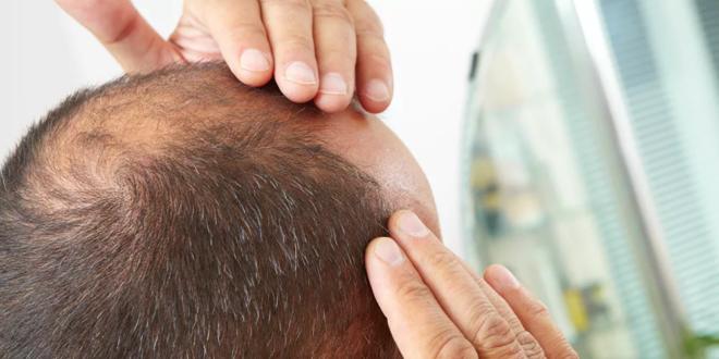 منع تساقط الشعر حتى ولو بالوراثة