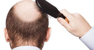 تجنبها لمنع تساقط الشعر