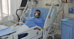 الصحة السورية: الحالات ترتفع وتسجيل 9 إصابات جديدة بالفطر الأسود!